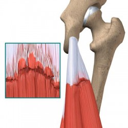 knee_hamstring_diagnosis03